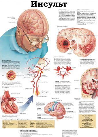 Дыхательная система и астма. Инсульт