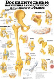 Язвы. Воспалительные нарушения тазобедренного и коленного суставов