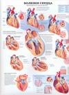 Болезни сердца. Гипертония