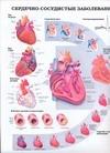 Сердечно-сосудистые заболевания. Инсульт